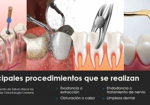 Lo que debo saber tratamientos y procedimientos más comunes en Odontología